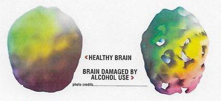 Image Credit: Daniel G. Amen, M.D.  (www.amenclinics.com)