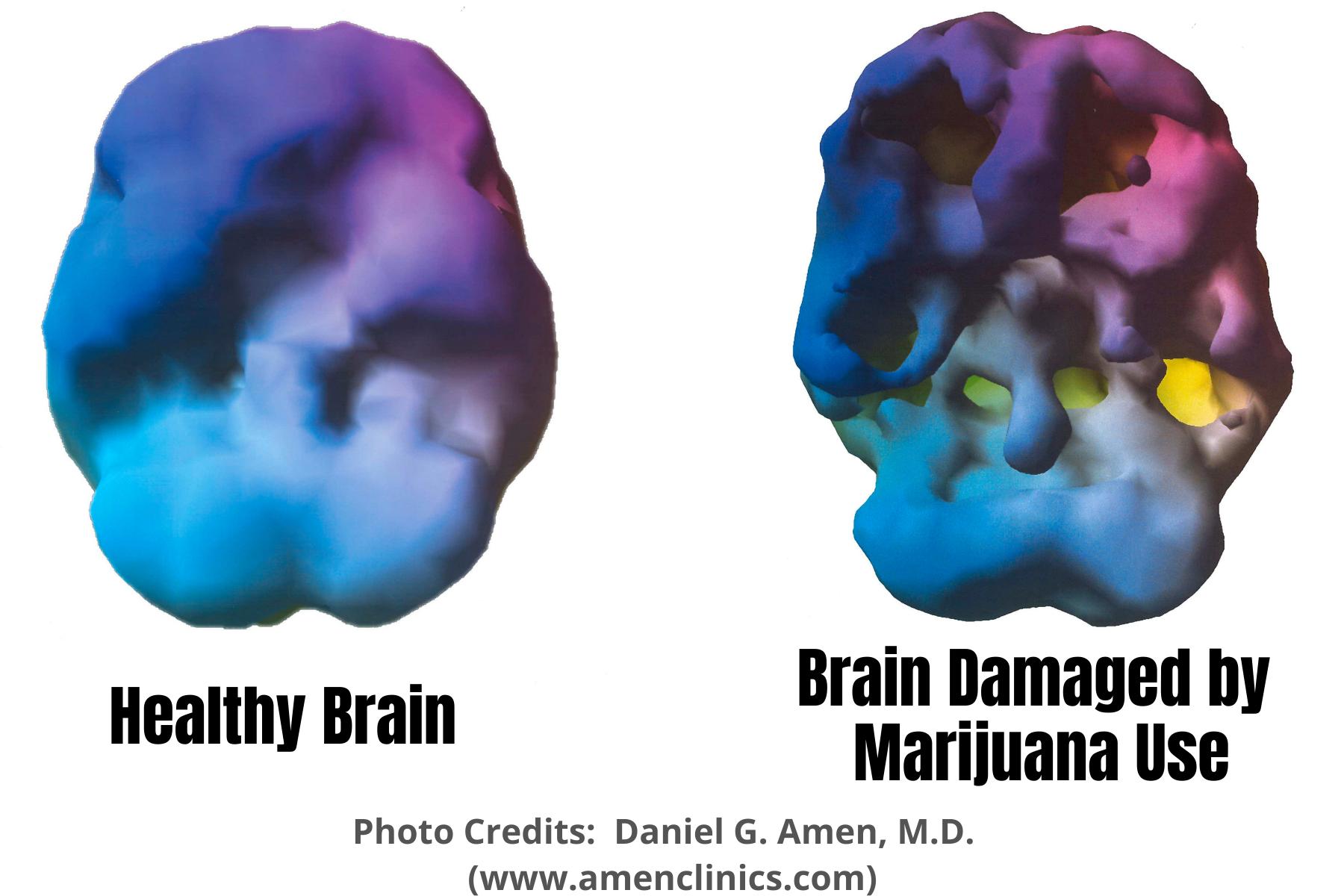 Healthy BrainBrain Damaged by Marijuana Scans